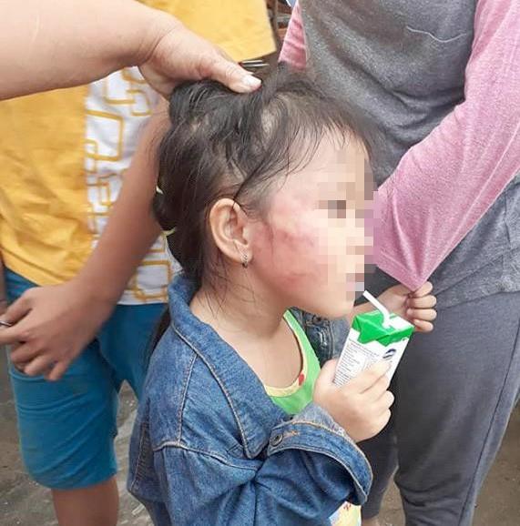 TPHCM: Bé gái 5 tuổi bị giáo viên mầm non đánh sưng mặt