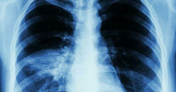 Dấu hiệu nhận biết viêm phổi