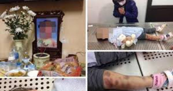 Chủ tịch UBND TP Hà Nội yêu cầu xử lý nghiêm vụ bố dượng và mẹ đẻ bạo hành con gái 3 tuổi tử vong