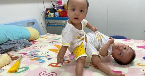 Tách rời thành công 2 bé gái song sinh, tiếp tục chuyển sang giai đoạn chỉnh, tạo hình các cơ quan