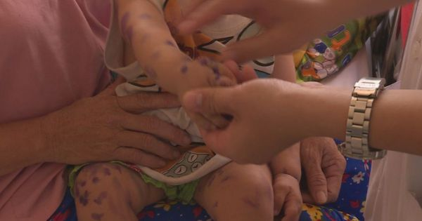 Bệnh tay chân miệng bùng phát tại Đắk Lắk