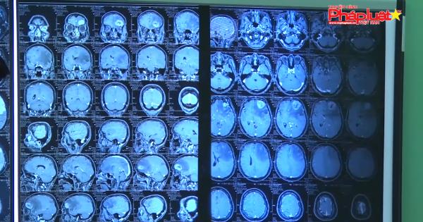 Bệnh nhận bị ký sinh trùng dài 7 cm chui vào não