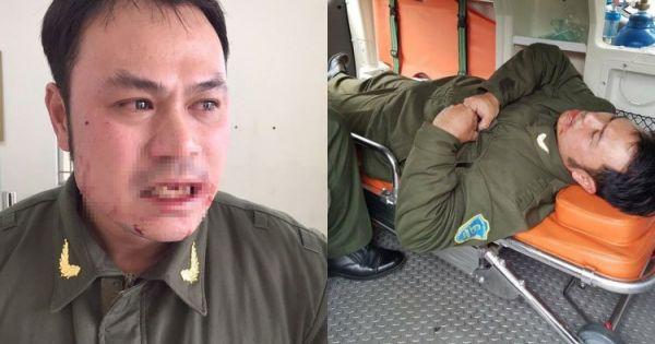 """Phó Thủ tướng yêu cầu xử nghiêm vụ """"cò mồi"""" đánh gãy răng an ninh sân bay"""