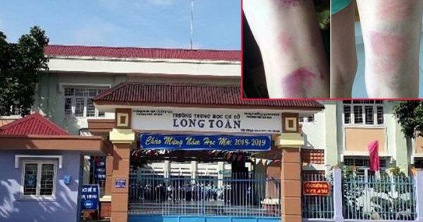Đình chỉ giảng dạy cô giáo đánh 22 học sinh bầm tím chân