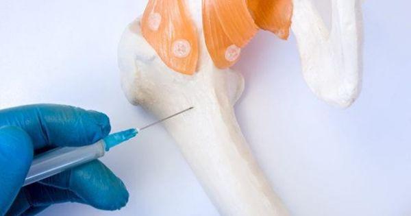 Nga thử nghiệm cấy ghép xương bằng kỹ thuật tế bào thế hệ mới